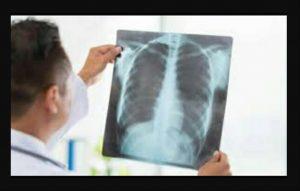 Solusi sehat untuk sakit Asma,paru-paru
